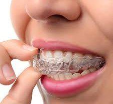 Zahnärztliche Verbrauchsmaterialien Market